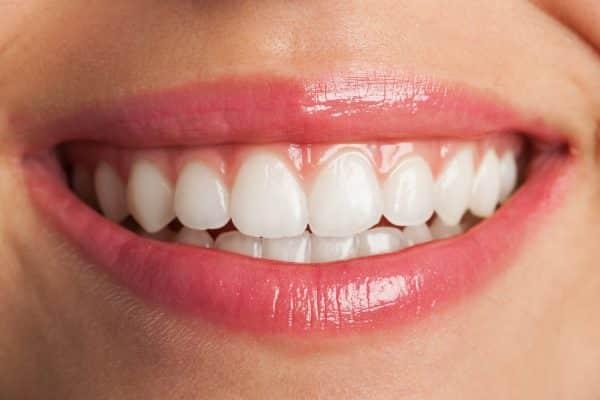 Kronen en bruggen tandarts